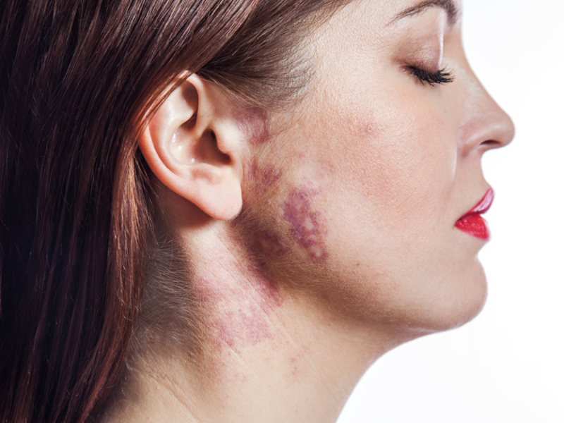 Skin-pigmented-lesions-limassol-cyprus