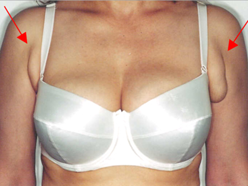 breast tissue-limassol-cyprus