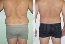 liposuction limassol