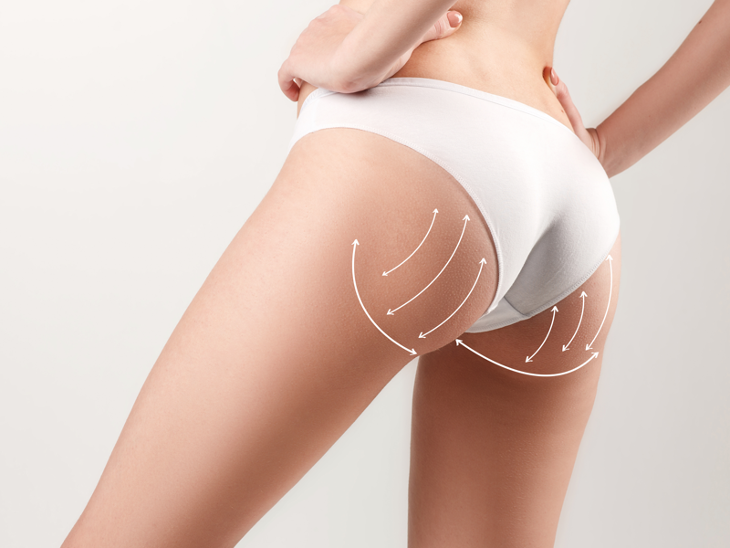 Liposuction-cyprus-limassol