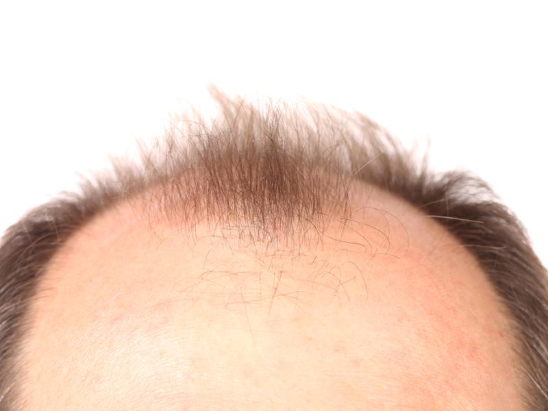 Hair-transplantation-cyprus-limassol-