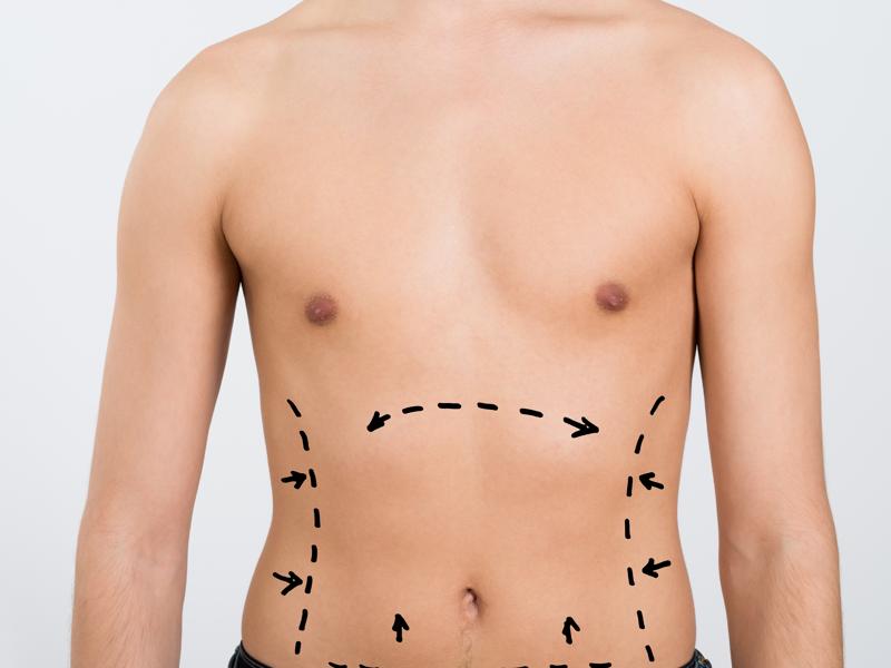 men-liposuction-limssol