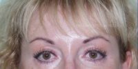 Blepharoplasty - No scar operations