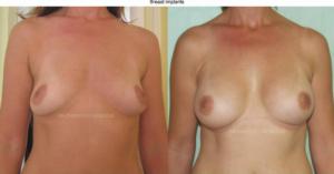 breast implants cyprus