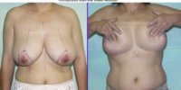 Breast reduction - no scar operations
