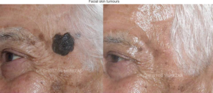 facial skin tumour