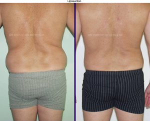 liposuction limassol