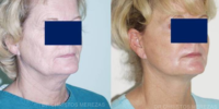 Neck lift - no scars operations