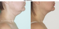 Neck liposuction 1