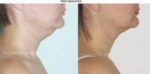 neck liposuction limassol