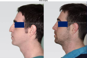 nose surgery cyprus