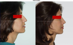 nose surgery limassol