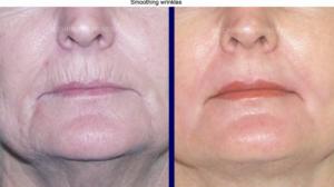 smoothing wrinkles aging lip