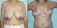Breast reduction - Incospicuous scars