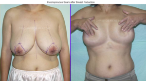 breast reduction limassol