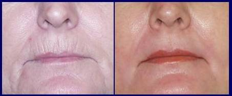 facelift-before-after